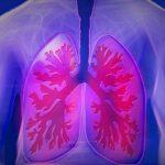 Živeti dobro s kronično obstruktivno pljučno boleznijo – vsi, povsod